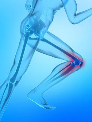 airalia dolor huesos8