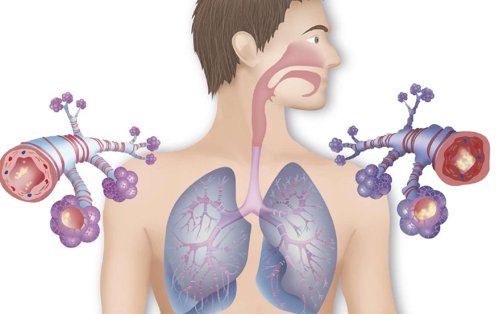 airalia bronquitis