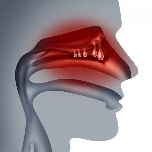 airalia humidificador sinusitis polipos nasales