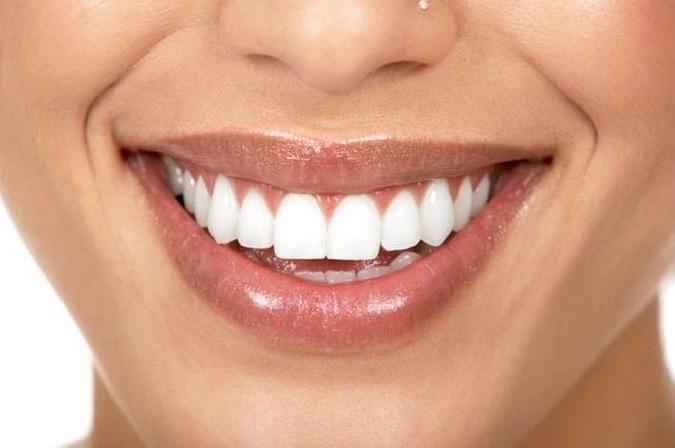 airalia dientes blancos 1