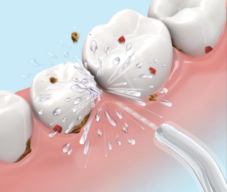 airalia irrigador dental agua